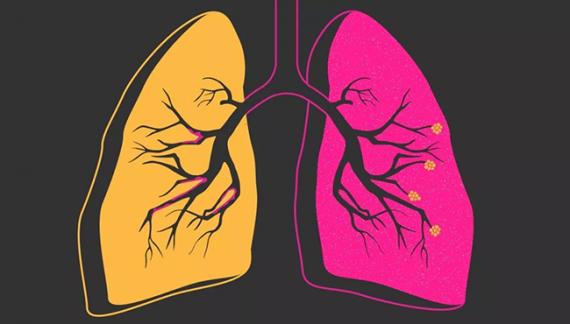 Новые исследования в сфере электронной сигареты (эффекты курения и вэйпинга у больных ХОБЛ)