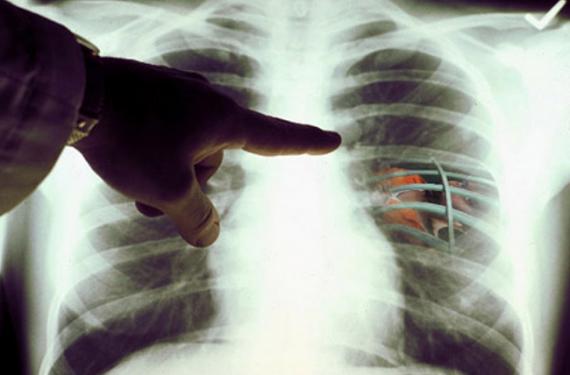 Болезнь Попкорн лёгких и связь с использованием электронных сигарет