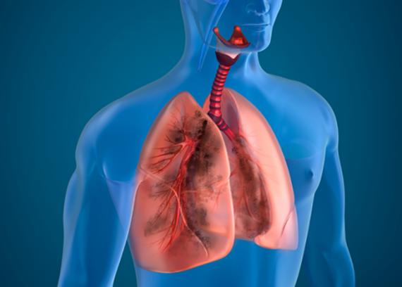 Эксперты рассматривают случаи заболевания легких, связанные с вейпингом
